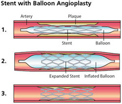 Stent on a Balloon