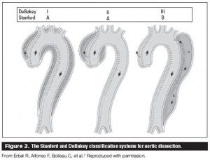 Image shows the two type A and one type B aortic dissection. In the DeBakey classification system, a type I dissection involves the entire aorta, while a type II dissection in­volves only the ascending aorta, and a type III dissection involves only the descending aorta. New staging systems that incorporate other aortic pathology have been devised, but are used primarily for research purposes.  Image from: http://www.bcmj.org/articles/aortic-interlude-dr-michael-debakey-aortic-dissection-and-screening-recommendations-abdomin